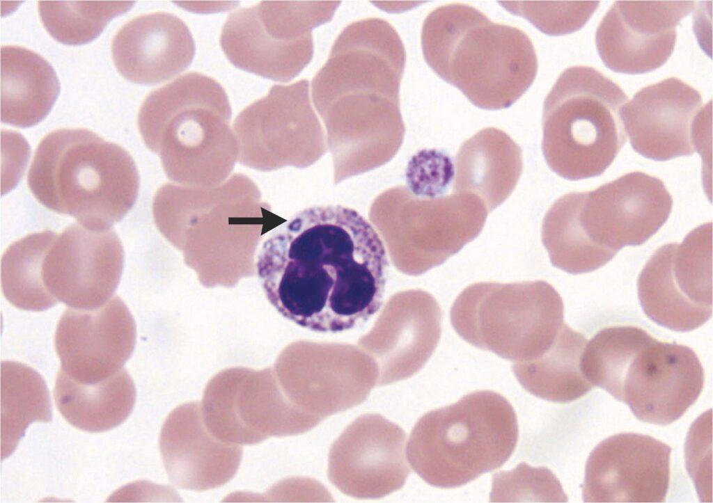 Zestawienie informacji na temat ludzkiej anaplazmozy granulocytarnej
